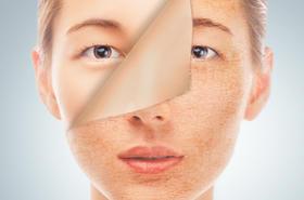 Suchość skóry nie daje Ci spokoju? Sprawdź sposoby, jak sobie z nią radzić!