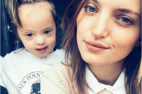 Piękna modelka i przystojny drwal mają dziecko z zespołem Downa. Ich synek-hipster stał się sensacją!