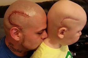 Pewien ojciec wytatuował sobie bliznę na głowie, w akcie solidarności z synem. PIĘKNA HISTORIA