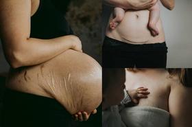 Te młode matki nie wstydzą się swoich blizn po cesarskim cięciu i rozstępów po ciąży! Pokazują je całemu światu. Słusznie?
