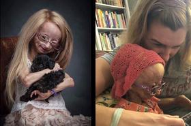 Ma 11 lat i organizm 90-letniej staruszki. Poznajcie dziewczynkę z progerią, którą pokochał świat