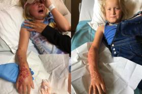 """Warto przeczytać - """"Tatuaż"""" z henny na ręku małego dziecka okazał się TORTURĄ!"""