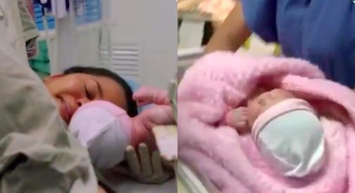 W chwili narodzin ta mała dziewczynka miała w sobie drugi płód!