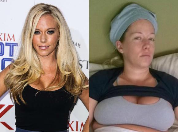 """Słynny króliczek """"Playboya"""" pokazuje brzuch po ciążach. Nawet ONA ma ten problem!"""