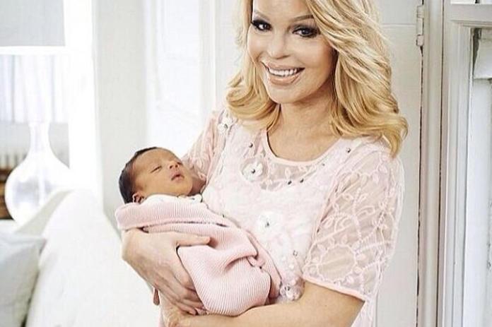 Poparzona kwasem modelka urodziła drugie dziecko! Jak dziś wygląda Katie Piper?
