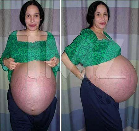 Jak wygląda matka OŚMIORACZKÓW 8 lat po porodzie? NIE UWIERZYCIE, że to możliwe!