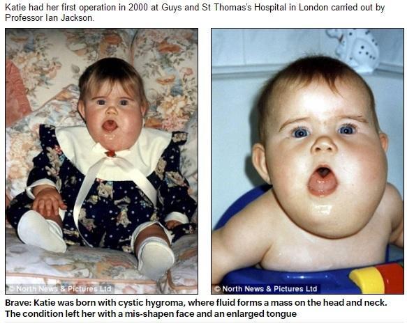 Jej rodzice byli PRZERAŻENI, gdy zobaczyli, jak wygląda po urodzeniu. Po latach jest NIE DO POZNANIA!