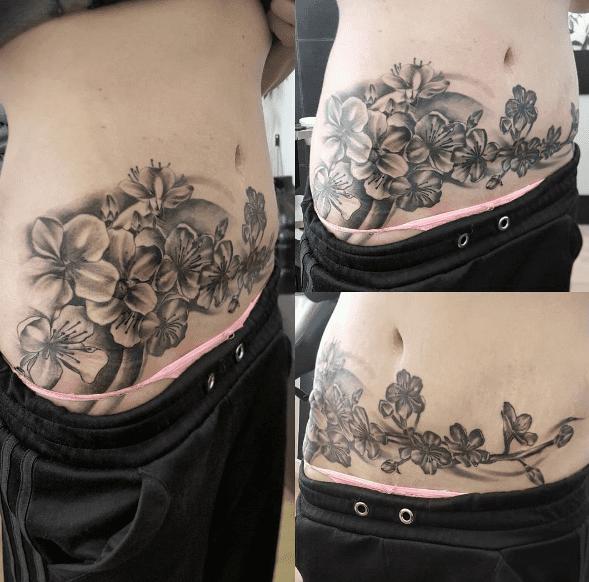 Ukrywają Blizny Po Cesarskim Cięciu Robiąc Sobie Tatuaże