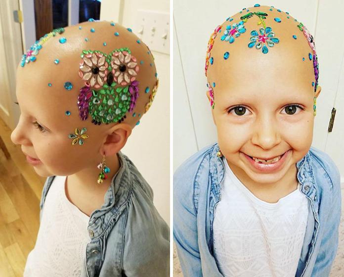 Ta 7-latka radzi sobie z chorobą w piękny sposób. Jej postawa jest godna naśladowania!