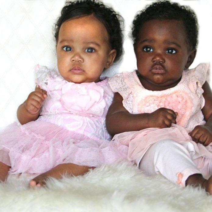 Bliźniaczki o różnych odcieniach skóry zostały gwiazdami Instagrama. Jak to możliwe, że tak bardzo się różnią?