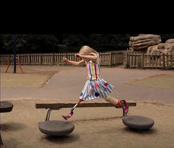 Dziewczynka bez nóg została MODELKĄ! Spełniła swoje wielkie marzenie