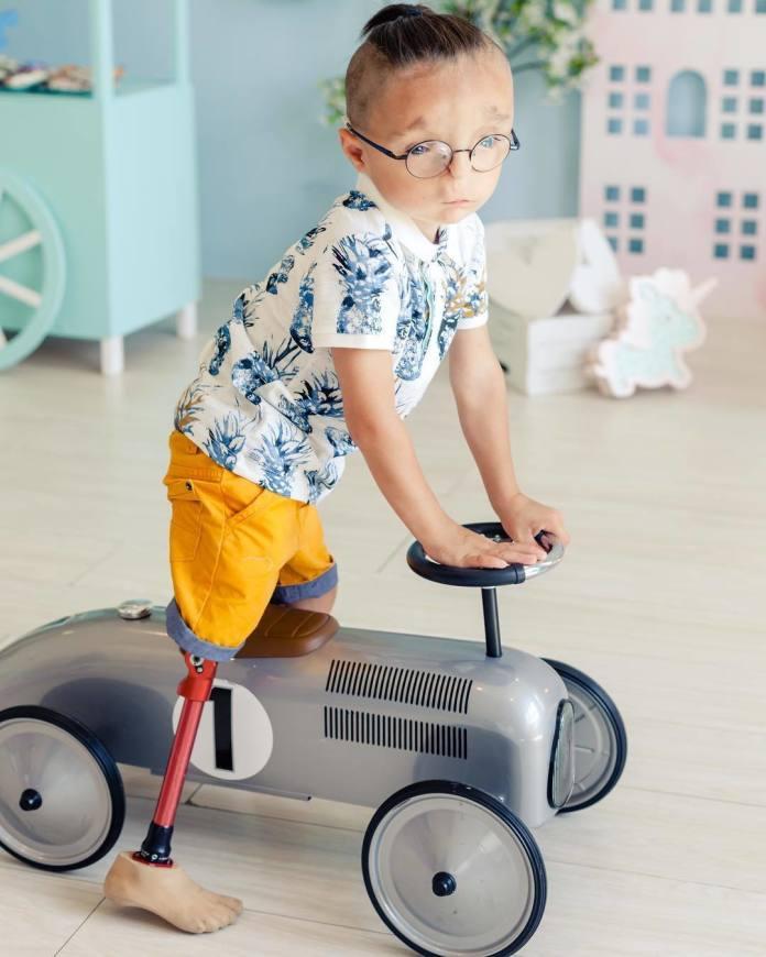 Tuż po narodzinach trafił do domu dziecka, a wszyscy nazywali go najbrzydszym chłopcem na świecie. A teraz, zobaczcie!